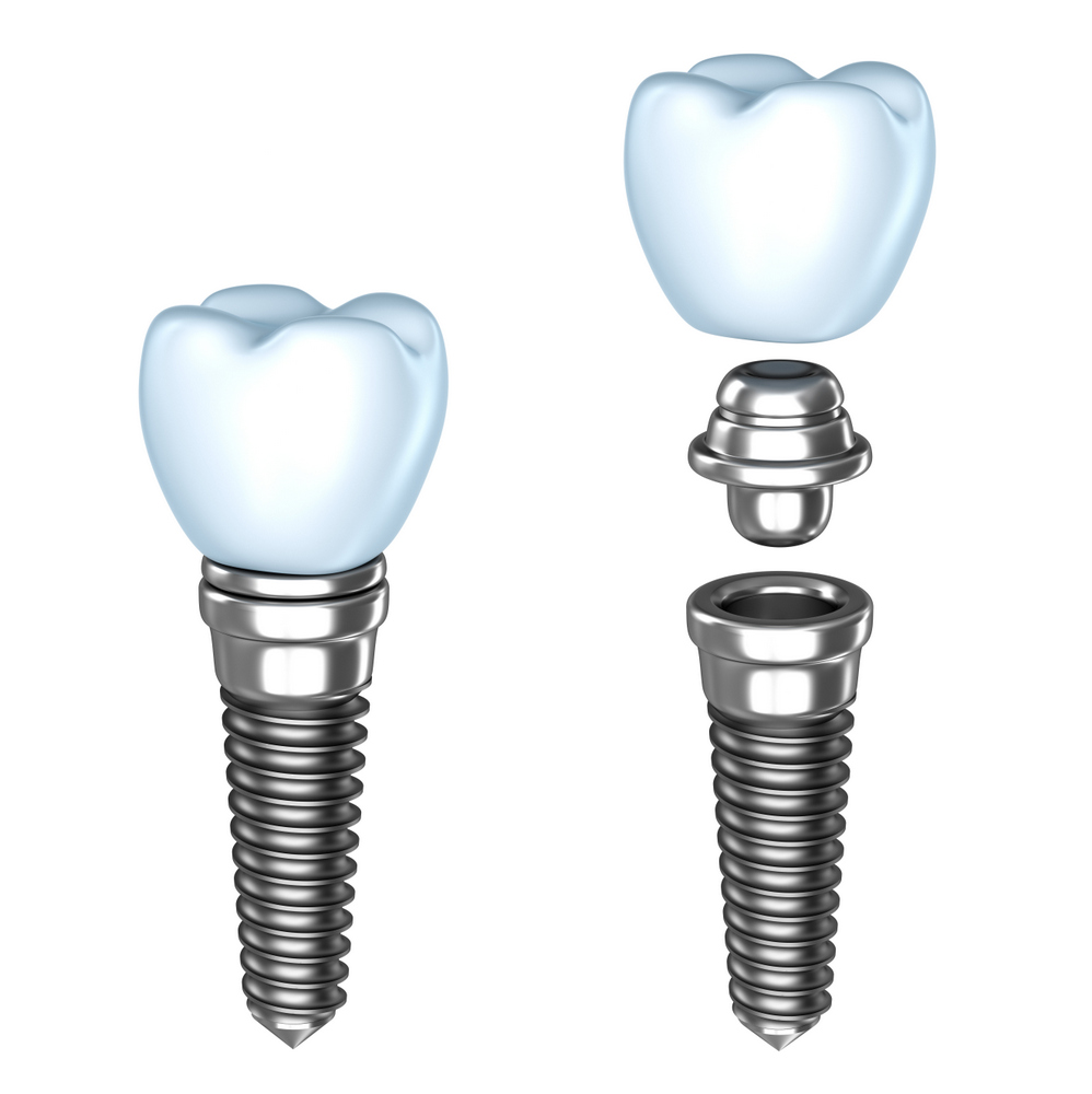 colton dental implant